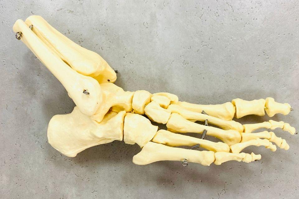 Artrose enkel